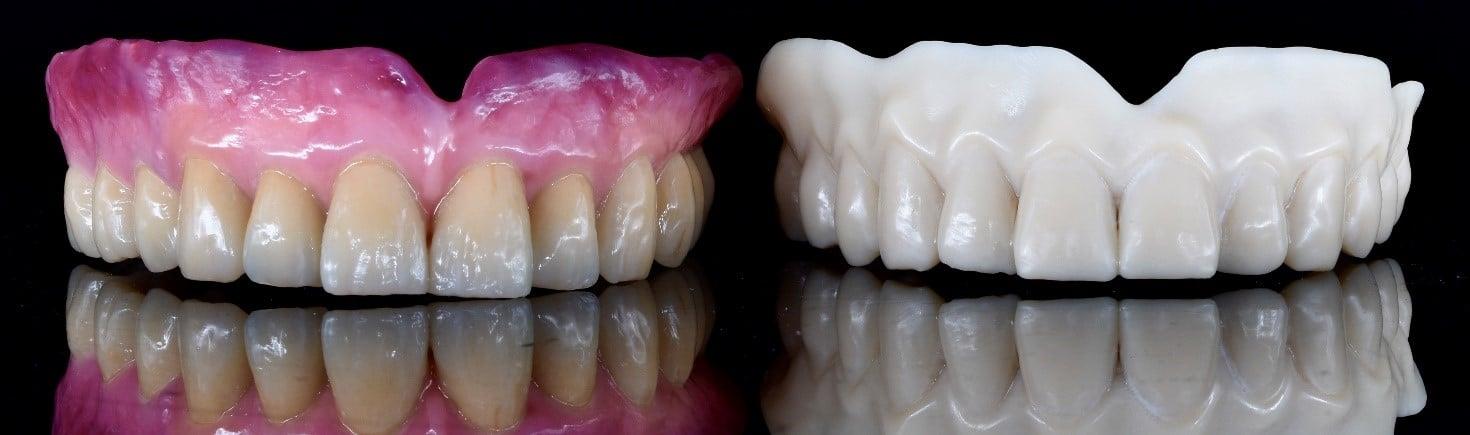 Figura 3: la precisione estrema di EVERES UNO permette di realizzare un provino che rispecchia in toto quello che sarà il manufatto protesico definitivo.