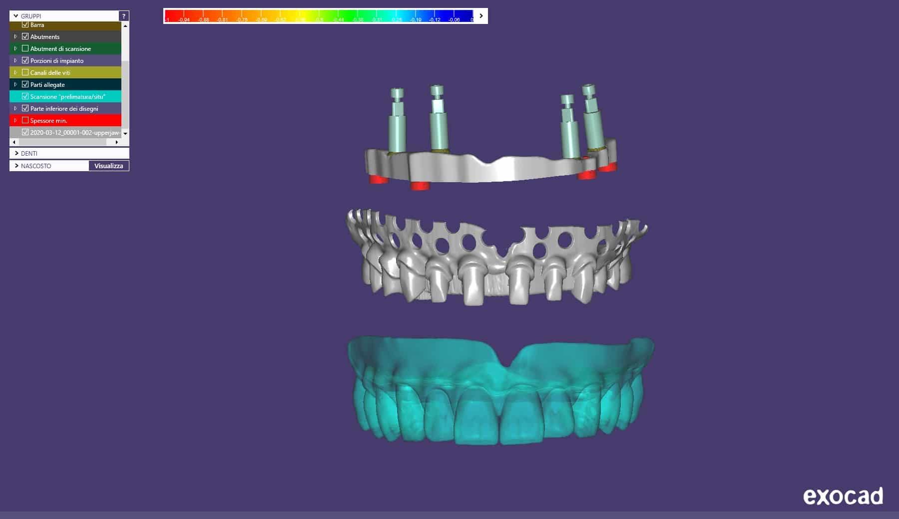 Figura 1: progettazione virtuale.